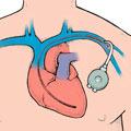 Un stimulateur cardiaque implanté dans le thorax. Le fil conducteur est introduit par voie veineuse jusqu'à la cavité cardiaque.