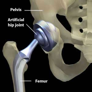 A fully-functional hip joint is created in a total hip replacement.