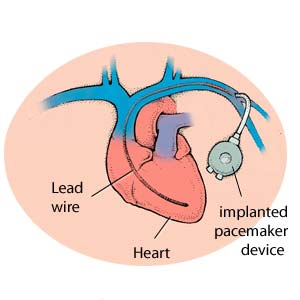 A pacemaker device implanted into the chest. Note the lead wire is inserted into the heart through a large vein.