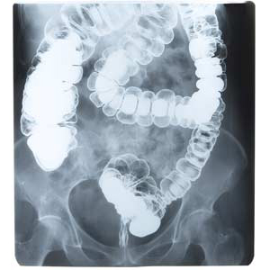 A X-ray image of a colon and rectum following a barium enema