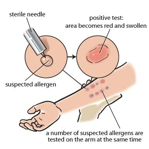 A skin prick test or scratch test