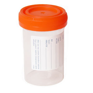 Example of a sterile container that may be used to collect a urine sample.