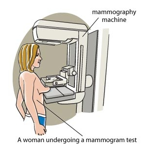 A woman undergoing a mammogram test