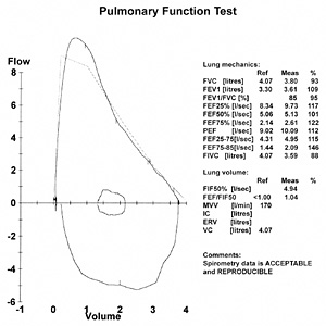 Lung Function Tests Medbroadcast Com