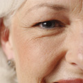 Aging Skin and Wrinkles